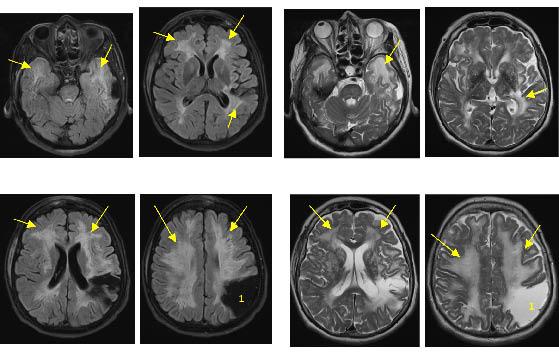 Bilan de troubles cognitifs et de chutes conduisant au diagnostic d ...