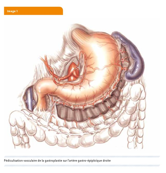 La gastrolyse coelioscopique dans le cancer de l'œsophage : un ...